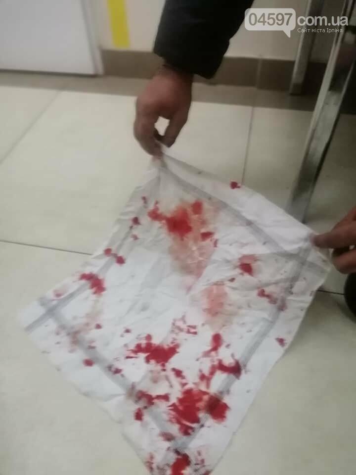 В Бучі жорстоко побили громадянина Індії, фото-3