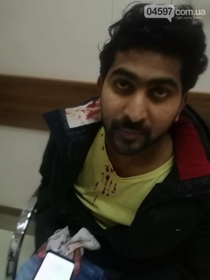В Бучі жорстоко побили громадянина Індії, фото-2