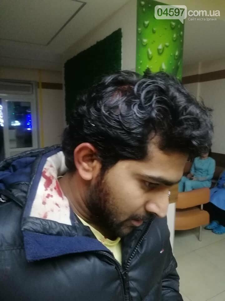 В Бучі жорстоко побили громадянина Індії, фото-1