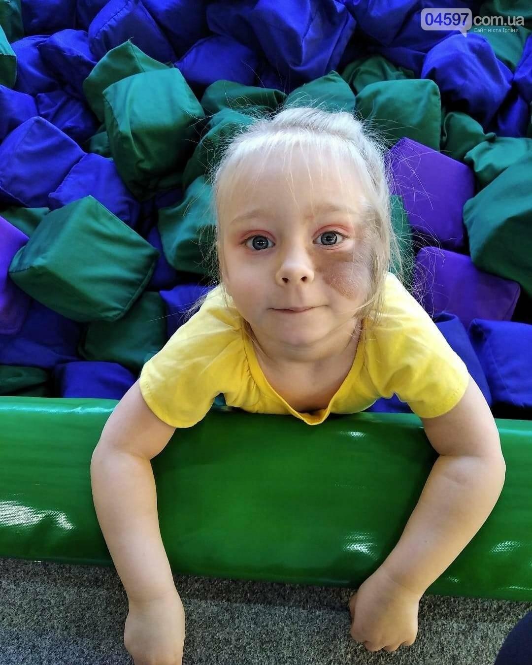 Врятуймо життя дитини: в Ірпені проведуть благодійний збір коштів для 4-річної Мілани, фото-2