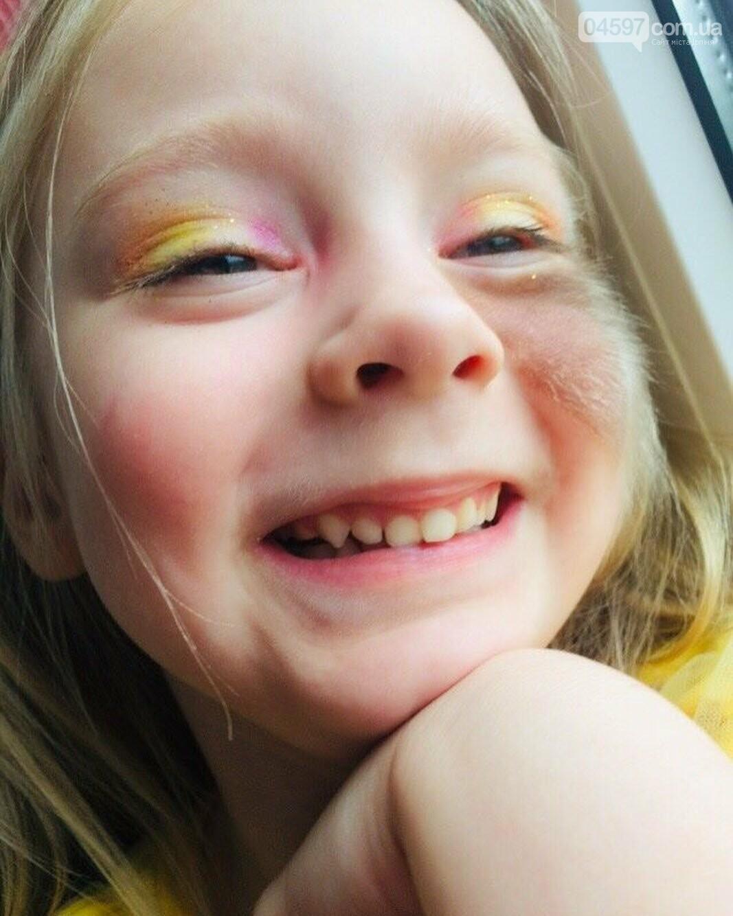 Врятуймо життя дитини: в Ірпені проведуть благодійний збір коштів для 4-річної Мілани, фото-1