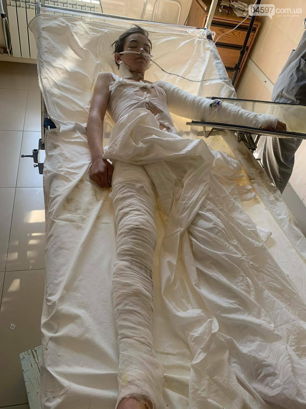 В Ірпені підлітка вдарило струмом, зараз збирають кошти на лікування