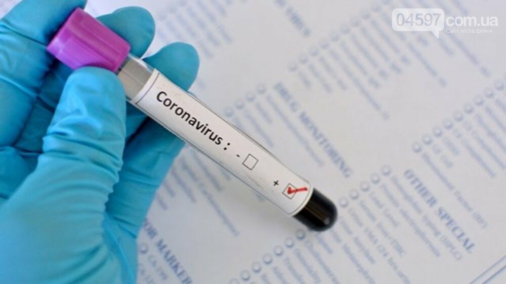 Після вихідних в Ірпені виявили 47 хворих на Covid-19, фото-1